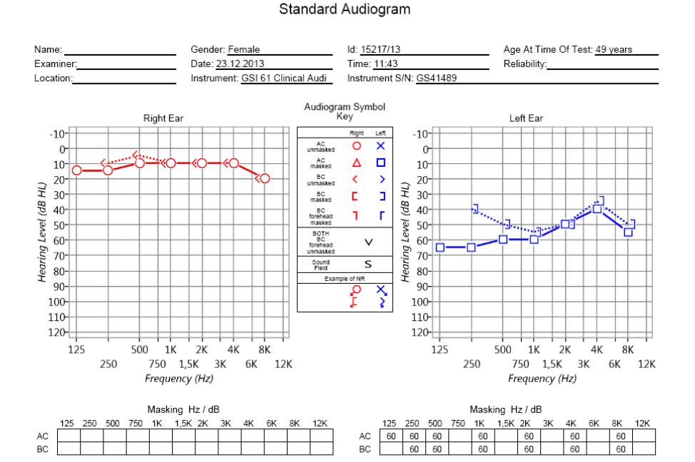 Что такое аудиометрия слуха