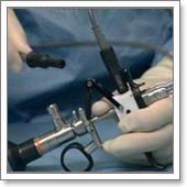 Офисная гистероскопия: как проводится процедура, что видит врач   университетская клиника