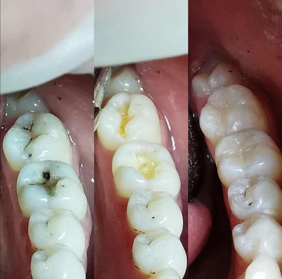Пломба на зуб: виды и описание