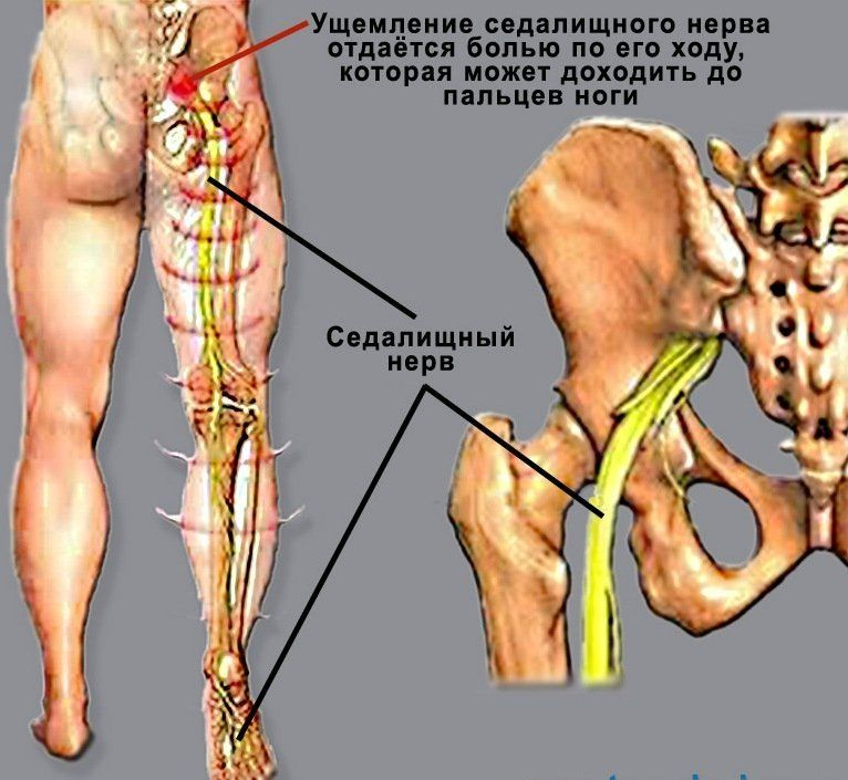 Что такое ишиас: воспаление седалищного нерва, симптомы и лечение