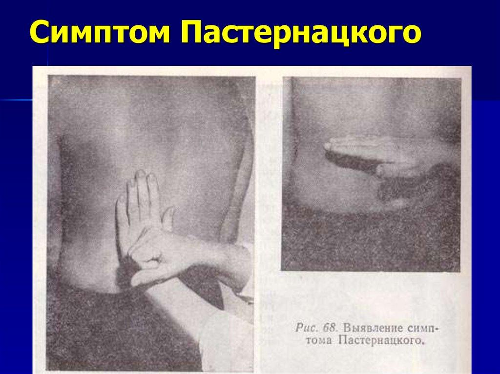 Симптом пастернацкого (поколачивания)- отрицательный с обеих сторон