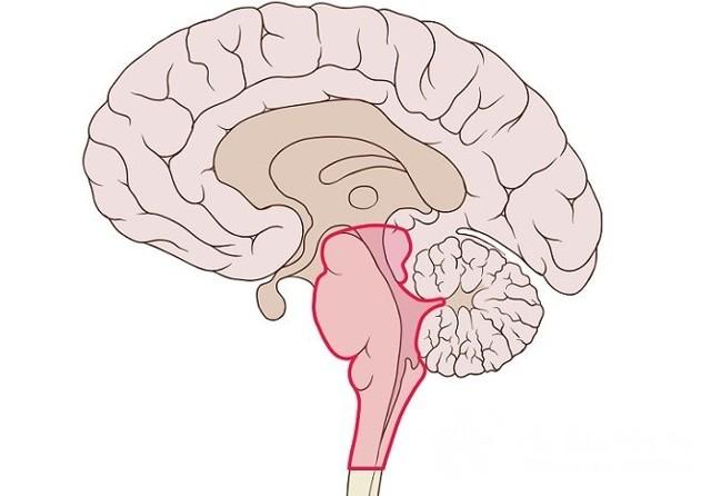 Что такое спинальный инсульт. особенности