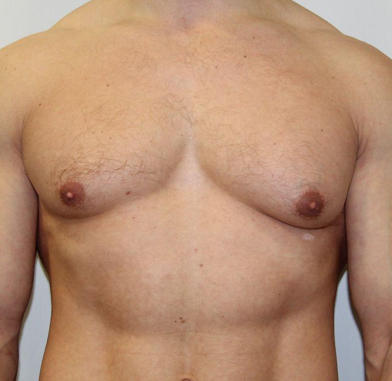 Что такое гинекомастия и как ее определить у мужчин?
