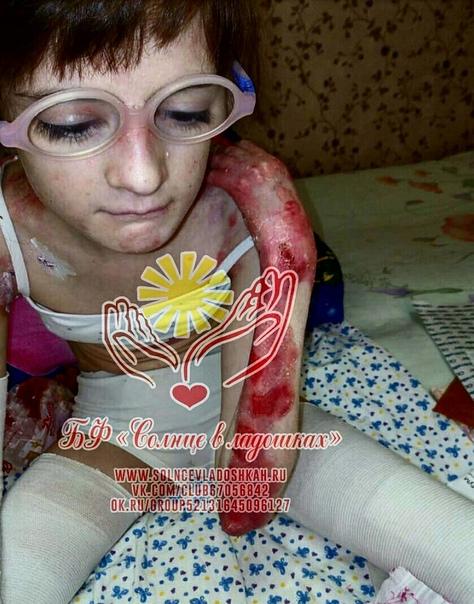 Синдром бабочки (буллезный эпидермолиз): причины, симптомы, лечение