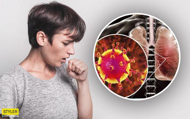 Что характерно для симптома матового стекла в легких?