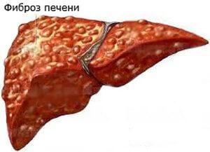 Ткани растений: меристема, паренхима и покровные ткани • биология-в.рф
