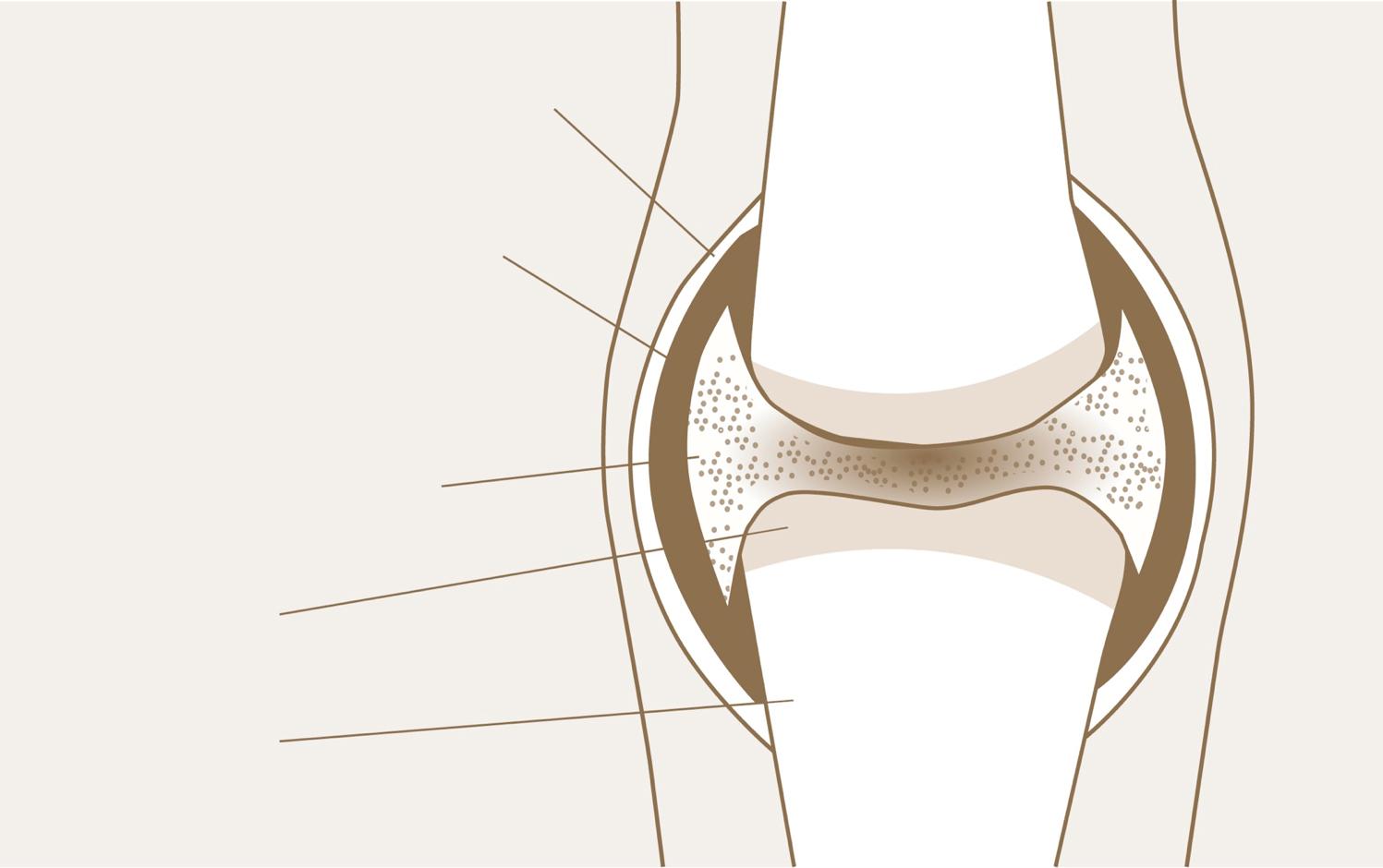Синовиальная жидкость при ревматоидном артрите
