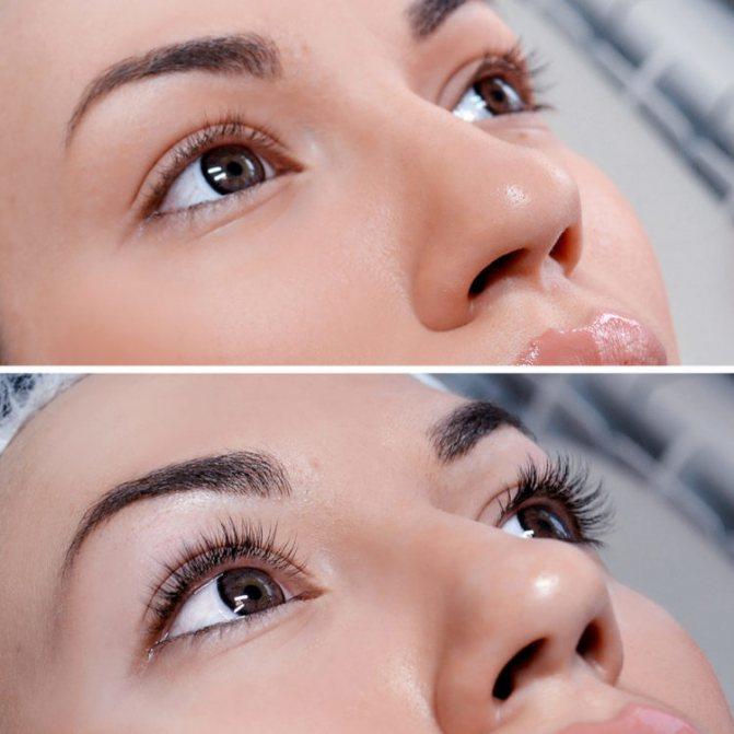 Ботокс ресниц- суть и преимущества процедуры botox lashes ботокс ресниц- достойная альтернатива наращиванию – womanmirror