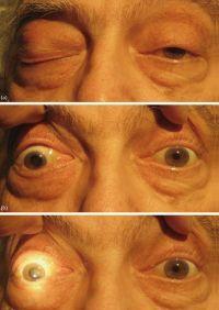 Анизокория — википедия. что такое анизокория