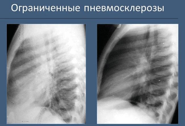 Пневмосклероз, описание заболевания на портале medihost.ru