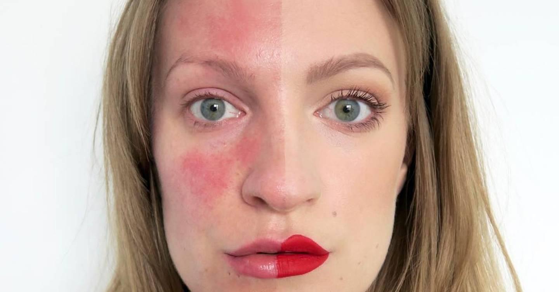 Как лечится артериальная гиперемия кожи лица и признаки венозного полнокровия кожных покровов