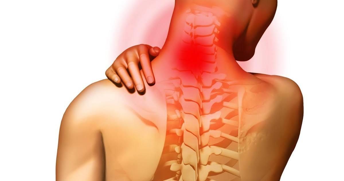 Цервикалгия: что это за диагноз, симптомы и лечение цервикалгии шейного отдела позвоночника