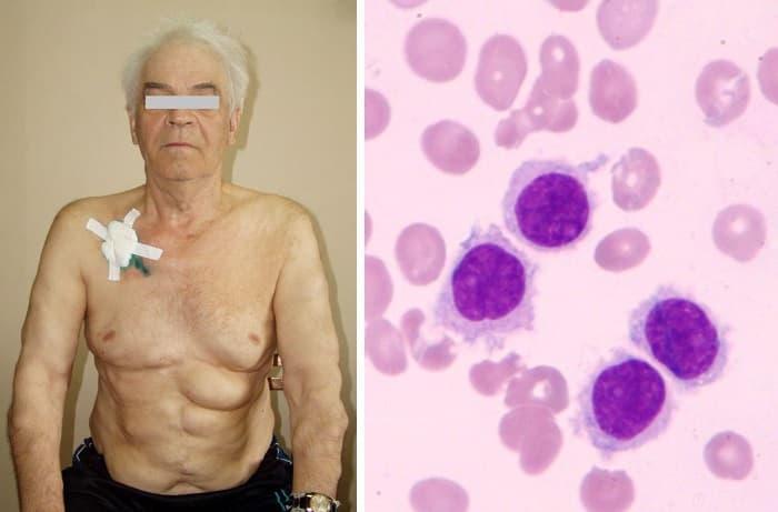 Лейкоз и лейкемия: в чем разница? причины, диагностика и лечение