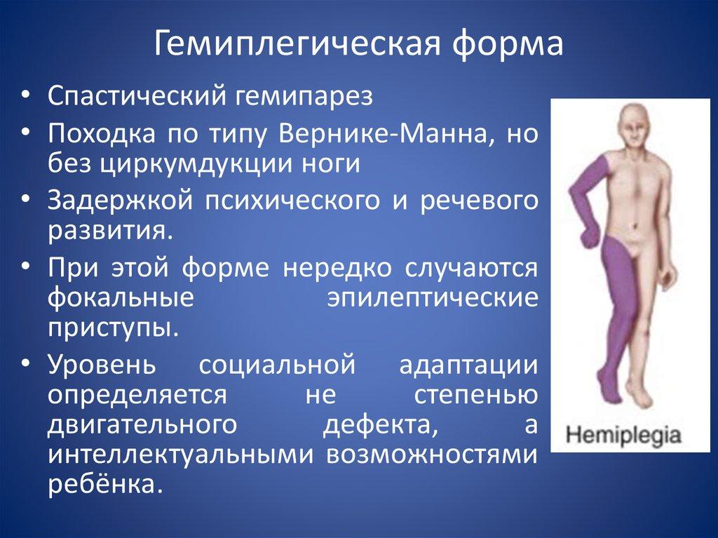 Гемипарез: левосторонний и правосторонний, что это такое, лечение спастическогого гемипареза у взрослых и детей, массаж