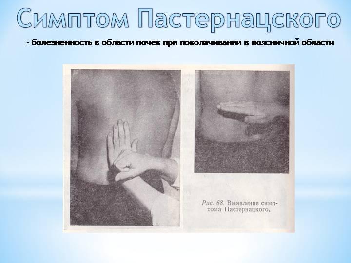 Симптом пастернацкого: факторы, диагностика, терапия