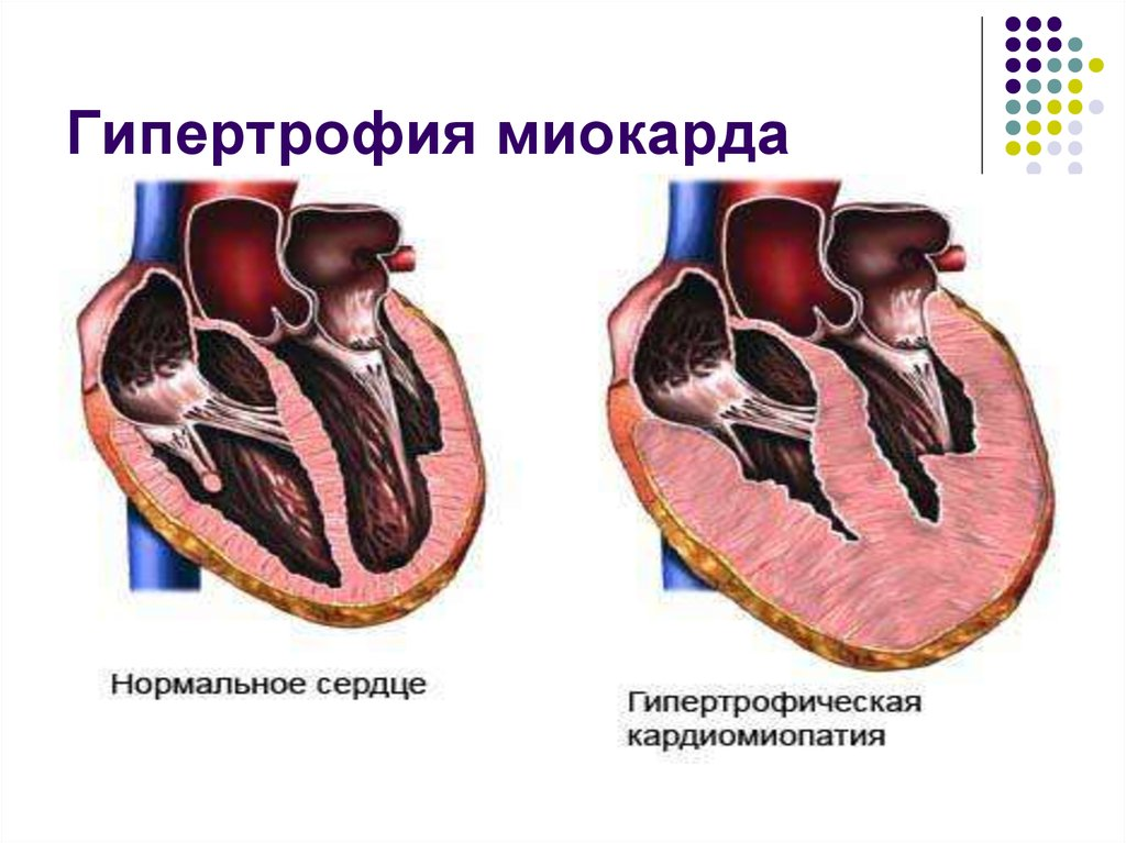 Почему возникает кардиомегалия и как её лечить