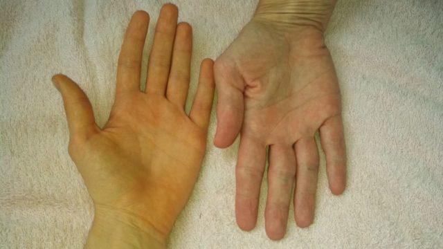 Цирроз печени - симптомы, лечение, стадии, причины, диета