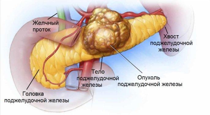 Синдром золлингера эллисона развивается при. что такое синдром золлингера эллисона? лечение синдрома золлингера-эллисона