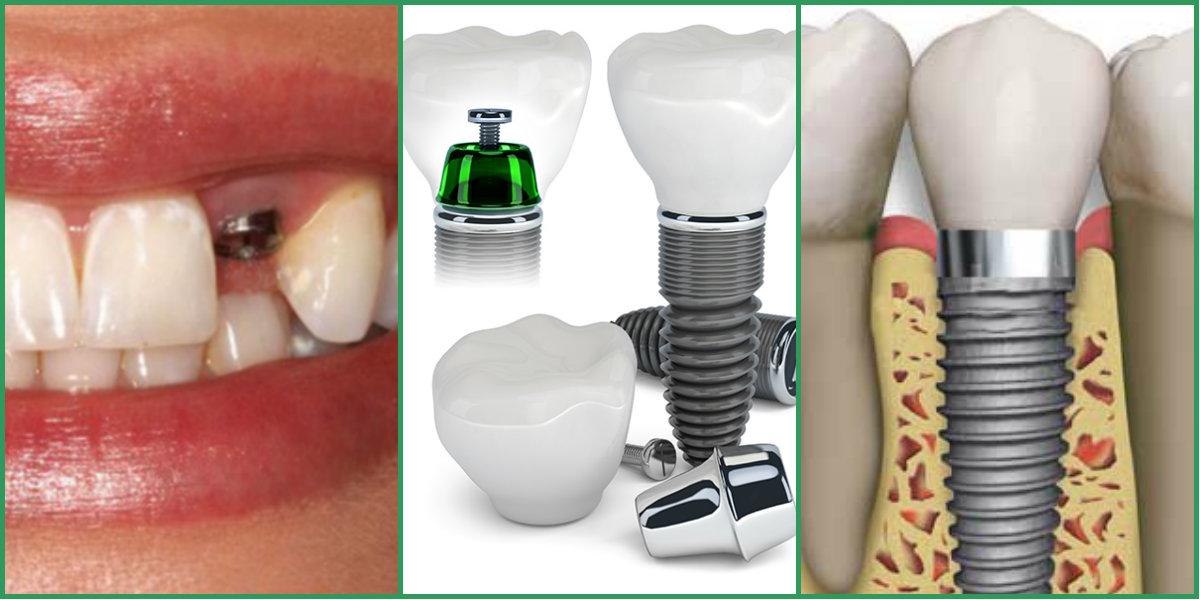 Что такое имплантация зубов — стоматология «эксперт»