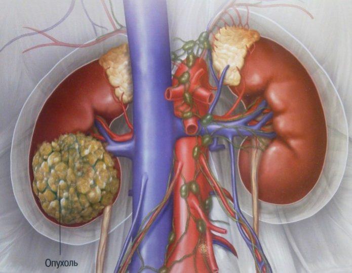 Ангиомиолипома почки - это рак?  фото, лечение и прогноз