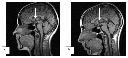 Симптомы и методы лечения кисты головного мозга у взрослого человека
