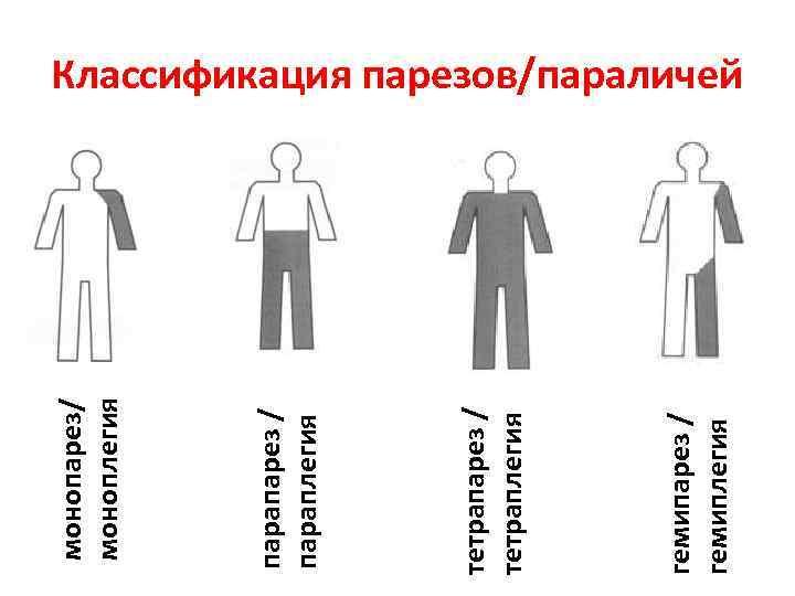 Гемипарез: что это такое? гемипарез: причины, симптомы и лечение.