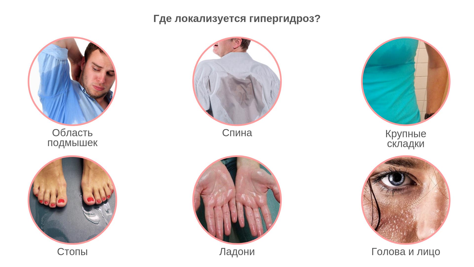 Гипергидроз: что это такое и как лечить