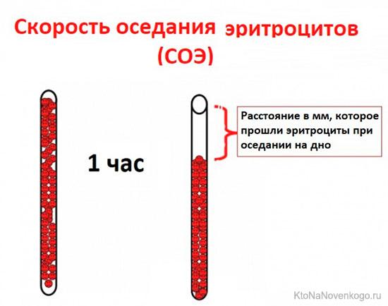 Определение соэ в крови по методу вестергрена