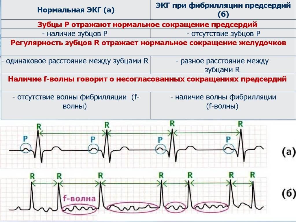 Рча сердца (радиочастотная абляция, прижигание): операция при аритмии