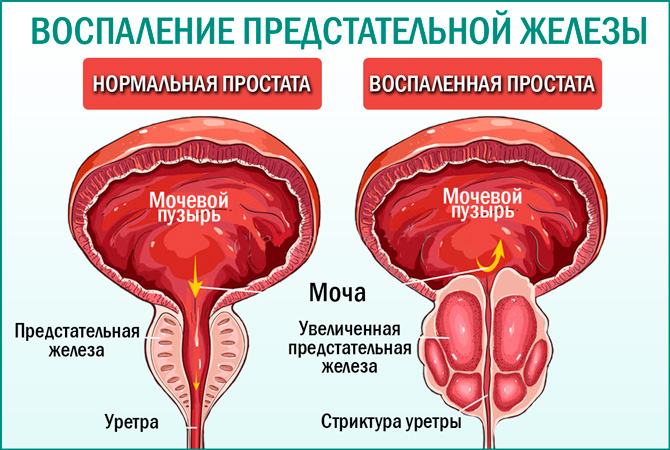 Лечение и причины простатита у мужчин