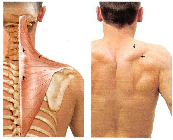 Мышечный миозит симптомы и признаки: как вовремя заметить заболевание