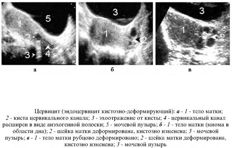 Эндоцервицит: что это такое? симптомы и лечение болезни :: syl.ru