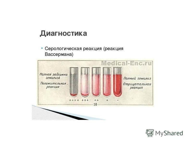 Кровь на rw: что это за анализ?