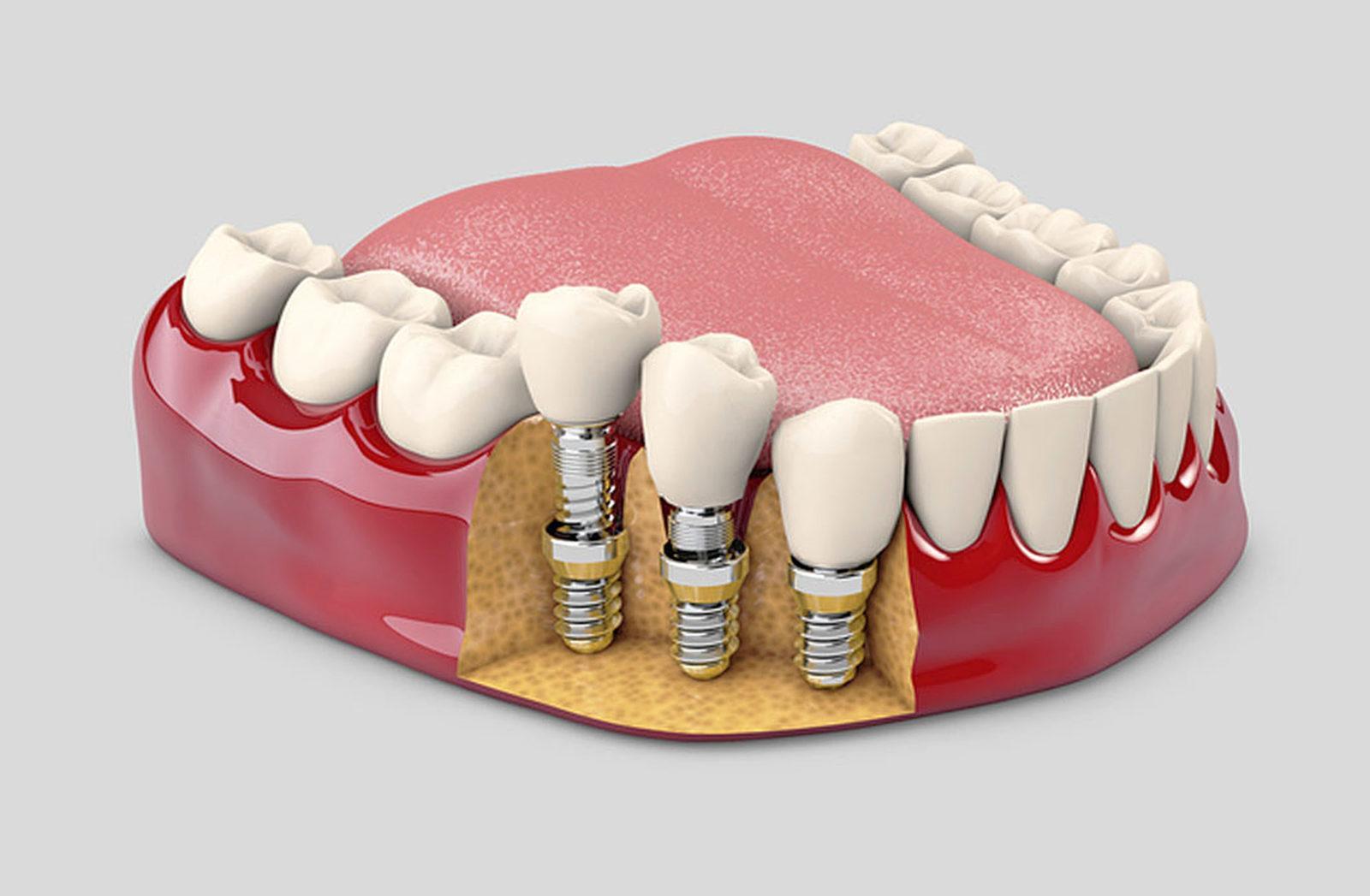 Имплант зуба: что это такое и зачем нужен