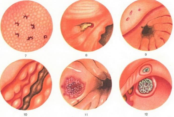 Папулезная гастропатия антрального отдела желудка - лечение гастрита