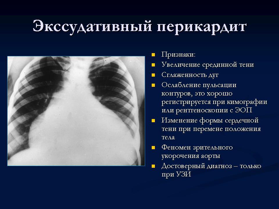 Перикардит: причины, симптомы, лечение