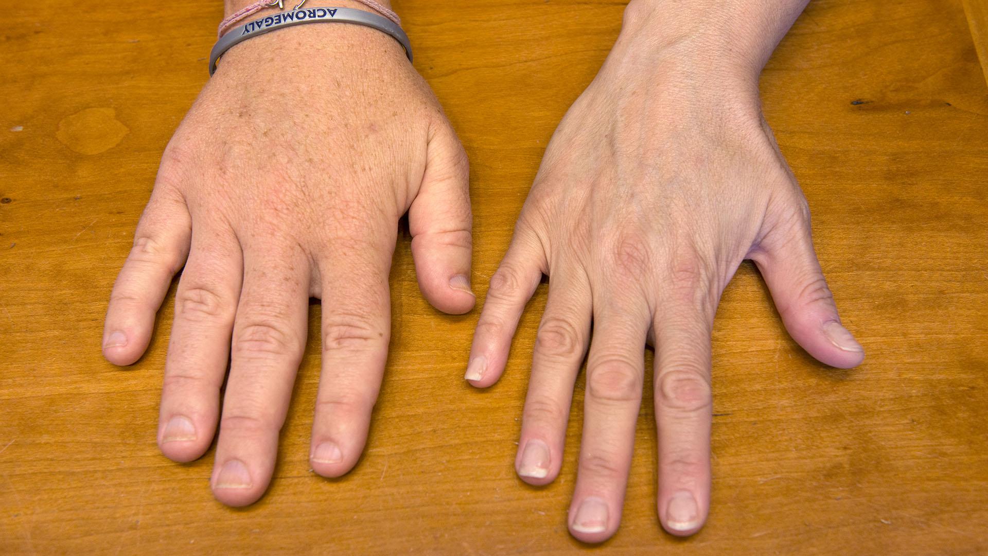 Акромегалия — википедия. что такое акромегалия
