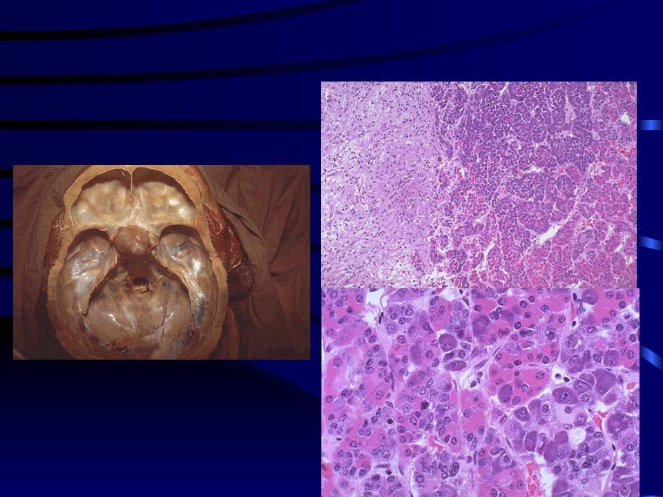 Ограничения при аденоме гипофиза | первый медицинский центр тель-авива