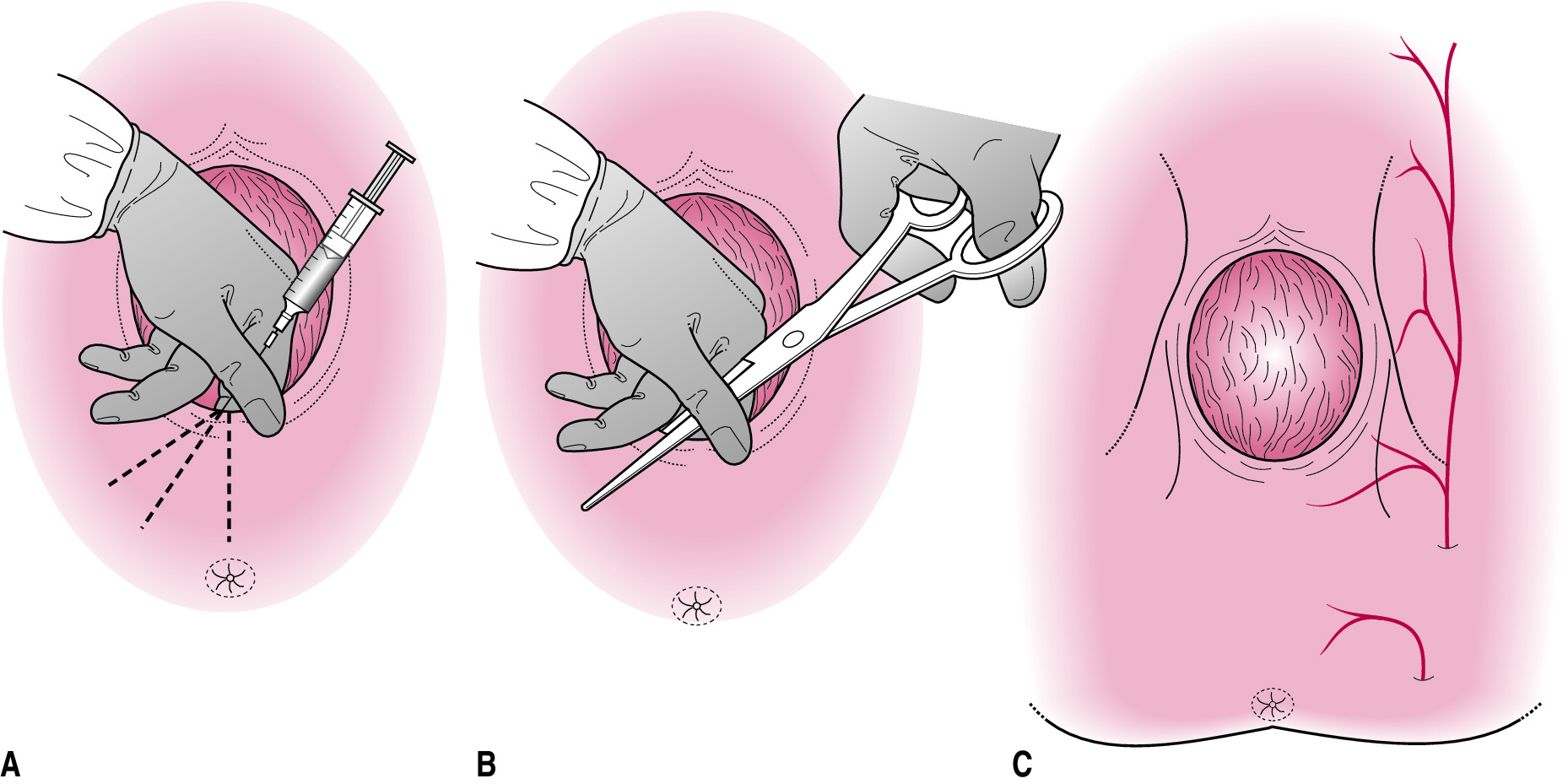 Эпизиотомия (14 фото): что это при родах? до и результат после разреза промежности, особенности надреза и как он называется