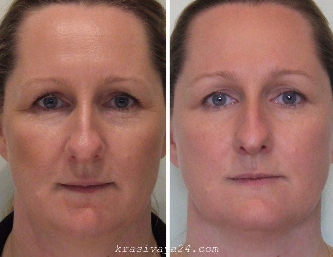 2 карбокси маски, карбокситерапия безинъекционная: co2 карбонатная для лица корейская