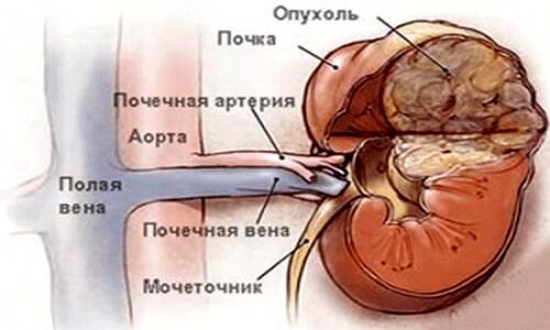 Ангиолипома левой почки   советы доктора
