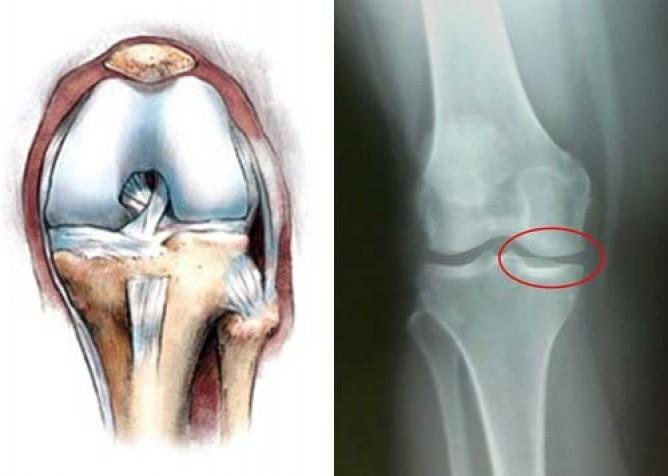 Двусторонний гонартроз 2 степени коленного сустава: что это, симптомы, лечение, инвалидность