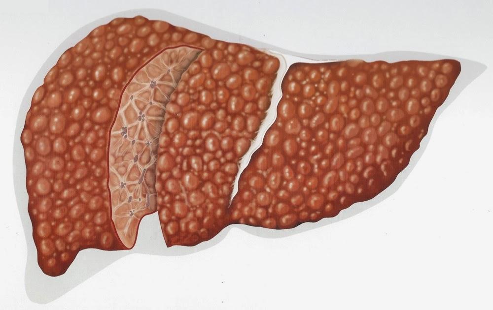 Лечение фиброза печени - фиброз 2 и 3 степени при гепатите с: препараты