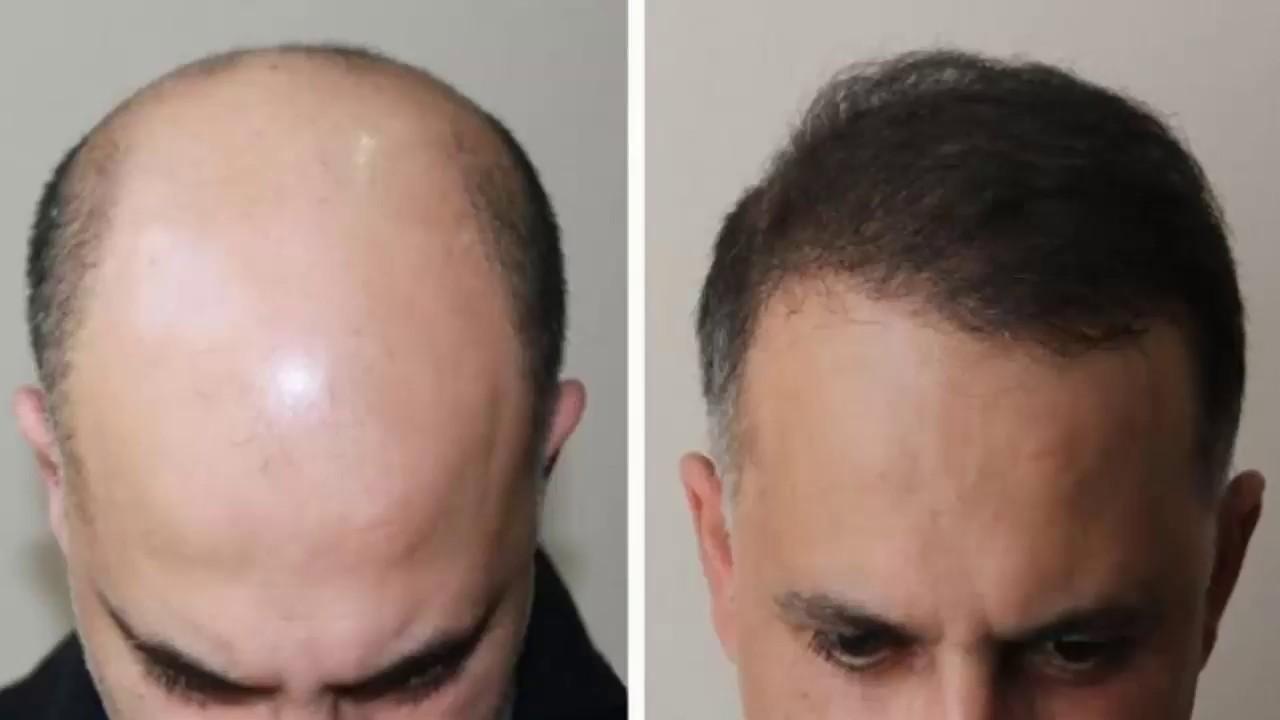 Миноксидил — препарат для роста волос, как правильно применять