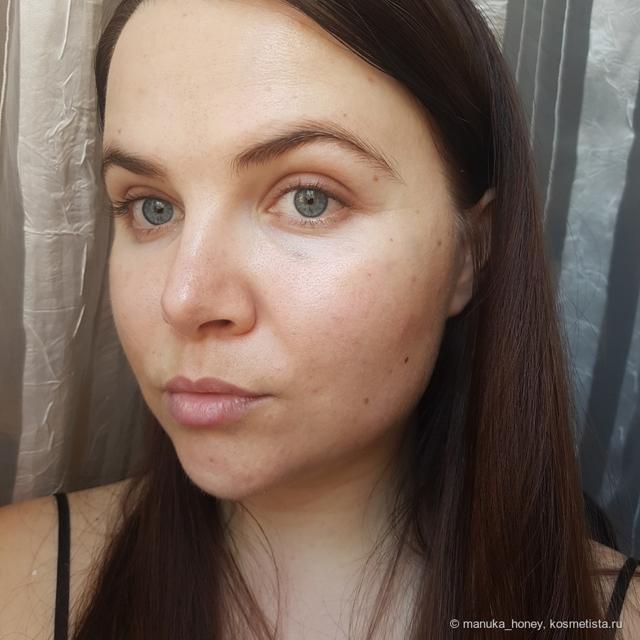 Плазмолифтинг лица и тела (уколы, лазерный метод от прыщей и старения): что это такое в косметологии, показания к процедуре