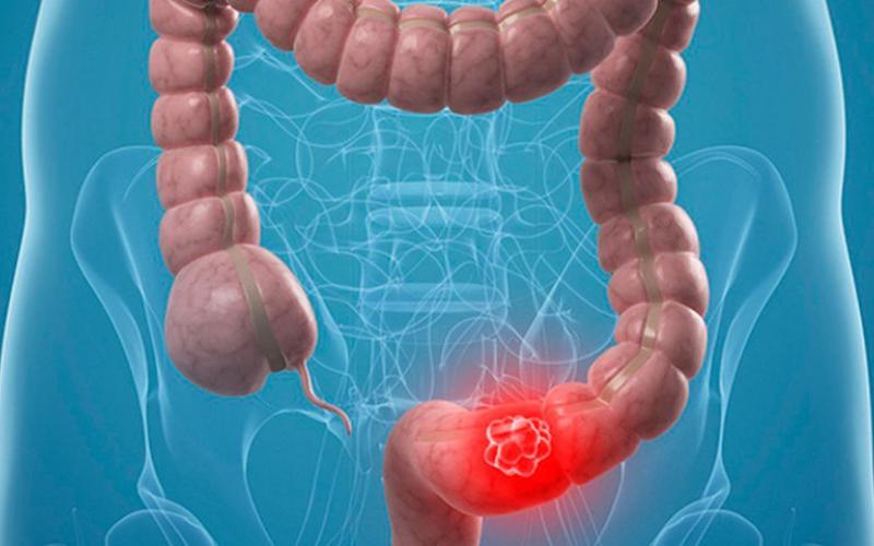Атония толстого кишечника - причины, симптомы и лечение - больвжелудке
