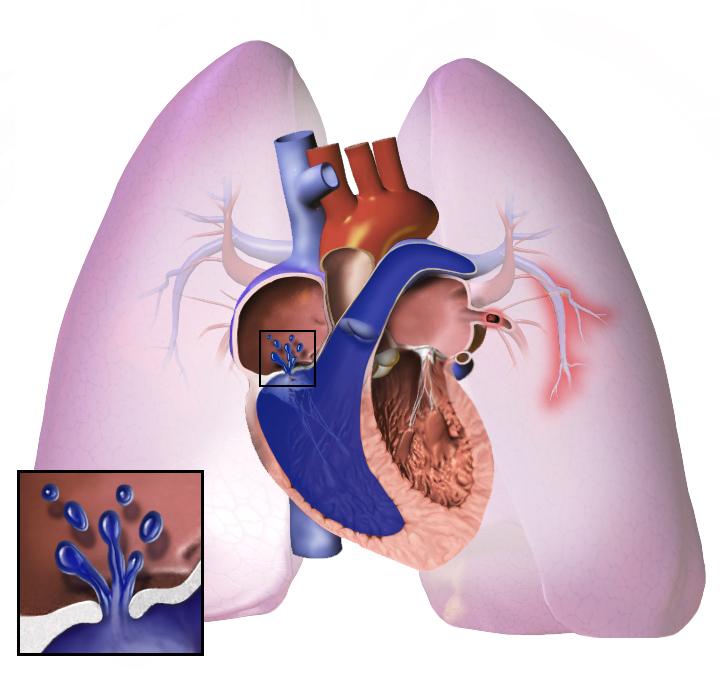Хроническое легочное сердце, лечение, причины, симптомы, профилактика.