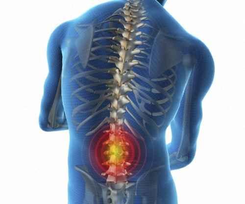 Люмбаго с ишиасом: лечение люмбоишиалгии поясничного отдела позвоночника, симптомы, причины