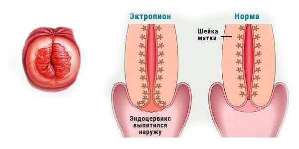 Утолщение эндоцервикса что это