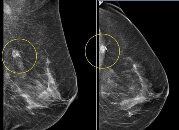 Как делают маммографию молочных желез: техника проведения процедуры у молодых и пожилых женщин, фото и видео, как проходит исследование